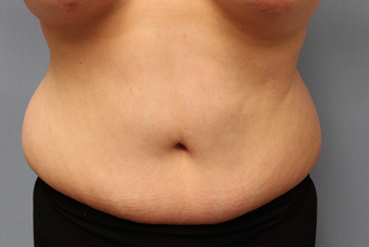 50 year old treated with liposuction of the abdomen before 1381810