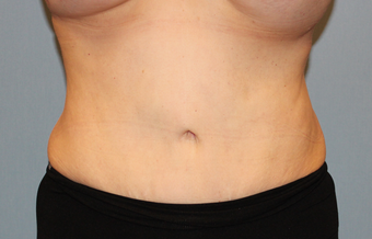 50 year old treated with liposuction of the abdomen