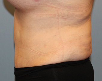 50 year old treated with liposuction of the abdomen 1381810