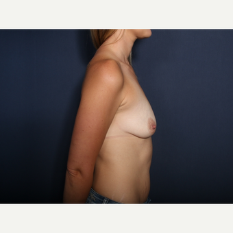 35-44 year old woman treated with Breast Lift with Implants (view 2 of 2) before 3788426