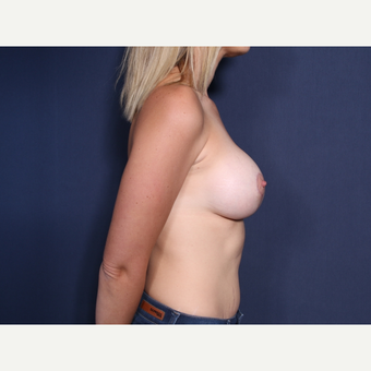 35-44 year old woman treated with Breast Lift with Implants (view 2 of 2) after 3788426