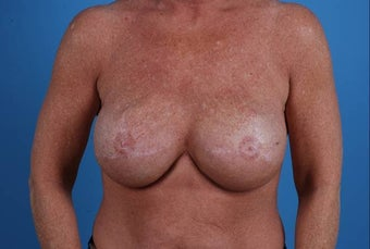 53 year old breast reconstuction following bilateral mastectomy after 1355441