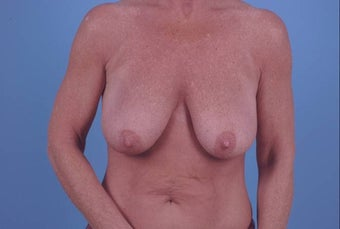 53 year old breast reconstuction following bilateral mastectomy before 1355441