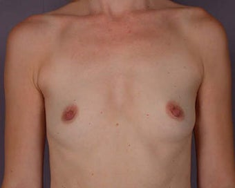 Breast Augmentation before 281426