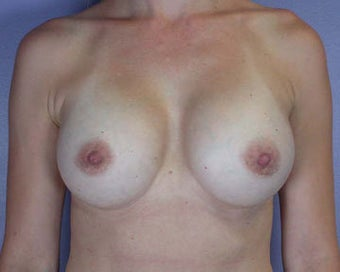 Breast Augmentation after 281426