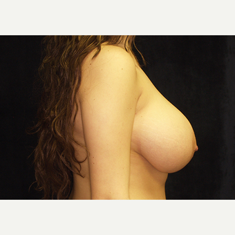 18-24 year old woman treated with Breast Lift with Implants before 3060963