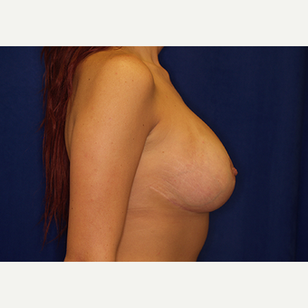 18-24 year old woman treated with Breast Lift with Implants after 3060963