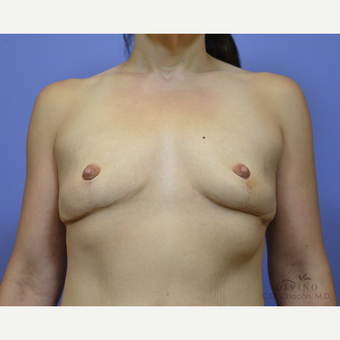 35-44 year old woman treated with Breast Lift with Implants before 3329409