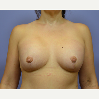 35-44 year old woman treated with Breast Lift with Implants after 3329409