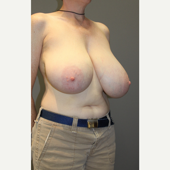 45-54 year old woman treated with Breast Lift before 3129307
