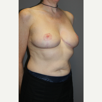45-54 year old woman treated with Breast Lift after 3129307