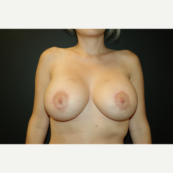 35-44 year old woman treated with Breast Augmentation after 2908024