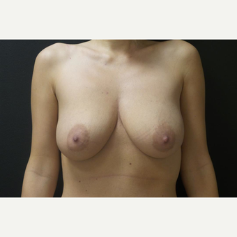35-44 year old woman treated with Breast Augmentation before 2908024