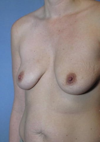 35-44 year old woman treated with Breast Lift with Implants before 2038594