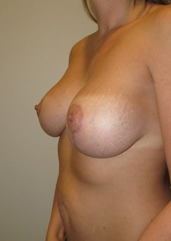 35-44 year old woman treated with Breast Lift with Implants after 2038594
