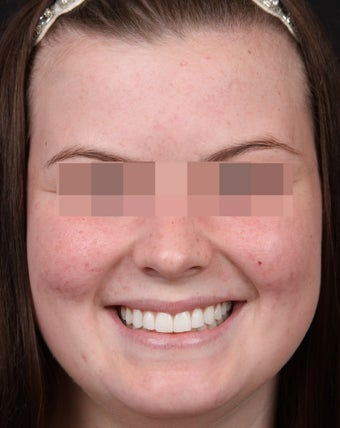 Acne Treatments for Teenage Breakouts after 1350563