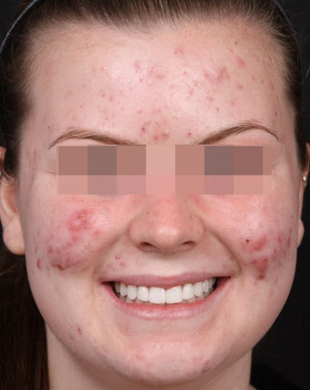 Acne Treatments for Teenage Breakouts before 1350563