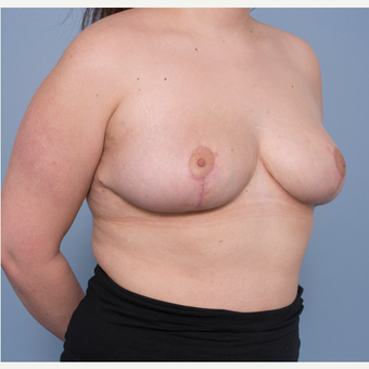 18-24 year old woman treated with Breast Reduction after 3532795