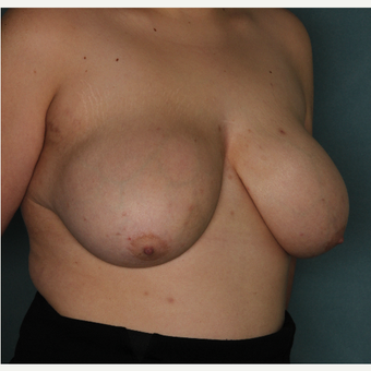 18-24 year old woman treated with Breast Reduction before 3532795