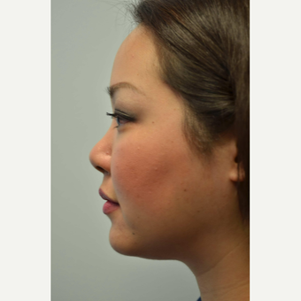 25-34 year old woman treated with Non Surgical Nose Job before 3687978