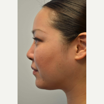 25-34 year old woman treated with Non Surgical Nose Job after 3687978