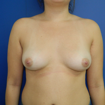 22 year old woman treated with Breast Augmentation before 3286917