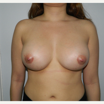 22 year old woman treated with Breast Augmentation after 3286917