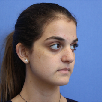 18-24 year old woman treated with Rhinoplasty before 3377737