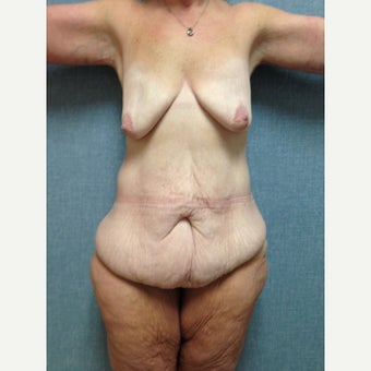35-44 year old woman treated with Body Lift before 1653557