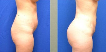 Brazilian Buttock lift before 1107909
