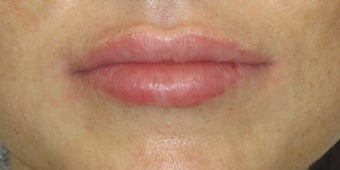 Mild to moderate volume loss in upper lips after 1034843
