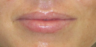 Mild to moderate volume loss in upper lips before 1034843