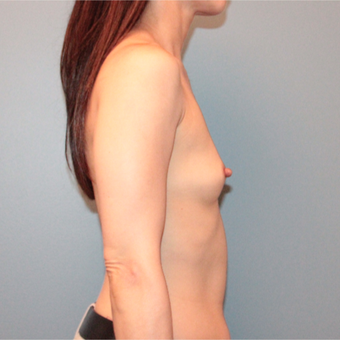45 year old woman had breast augmentation with 305cc Sientra Breast Implants before 3389784