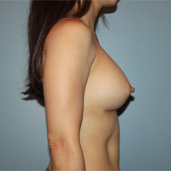 45 year old woman had breast augmentation with 305cc Sientra Breast Implants after 3389784