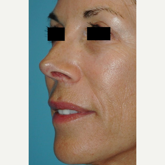 55-64 year old female treated with Microneedling after 2882847