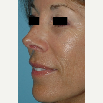 55-64 year old female treated with Microneedling before 2882847
