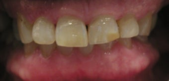 Full Mouth Reconstruction with Porcelain Crowns and Veneers before 889508