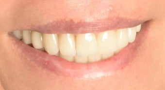 Full Mouth Reconstruction with Porcelain Crowns and Veneers after 889508