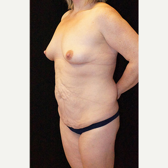 Body Contouring after Lap Band surgery before 3332825