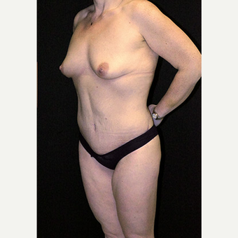 Body Contouring after Lap Band surgery after 3332825