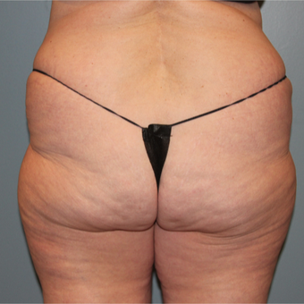 57 year old woman treated with Cellfina for cellulite after 3467389