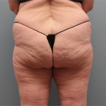 57 year old woman treated with Cellfina for cellulite before 3467389