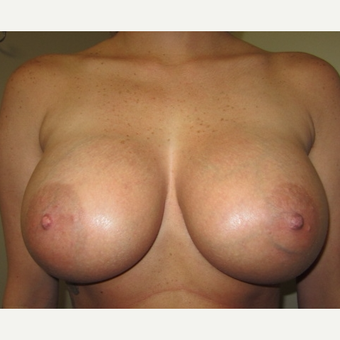 25-34 year old woman treated with Breast Implants after 3129251