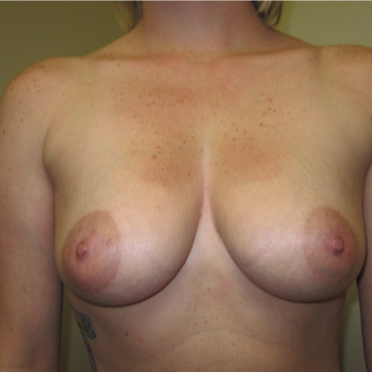 25-34 year old woman treated with Breast Implants before 3129251