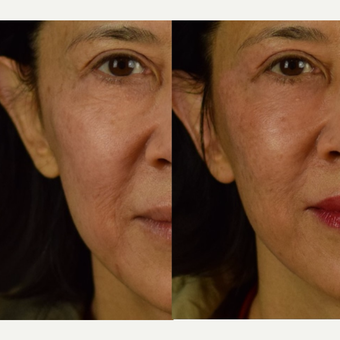 Wrinkles Diminished with HALO Laser - Asian Skin