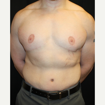 35-44 year old man treated with Male Tummy Tuck after 2618831