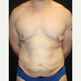 35-44 year old man treated with Male Tummy Tuck before 2618831