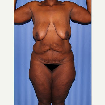 45-54 year old woman treated with Body Lift before 2737576