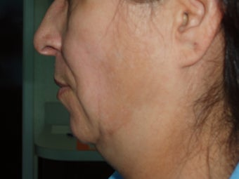 50's y/o female with discoloration and thick sagging face/neck skin 1331603