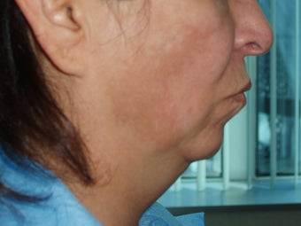 50's y/o female with discoloration and thick sagging face/neck skin before 1331603